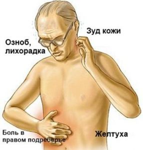 Желтуха при болезнях печени