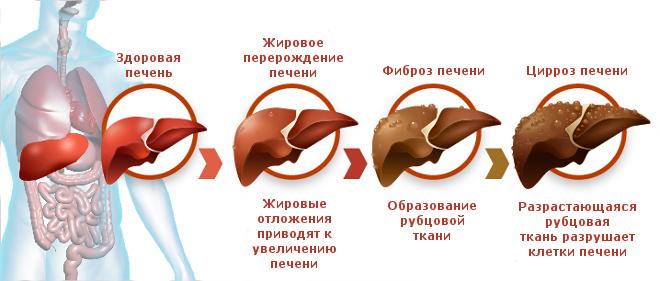 mozhno-li-vylechit-cirroz-pecheni-2