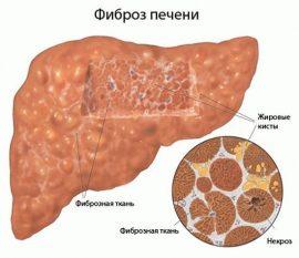 Гепатит с фиброз 4 степени лечение
