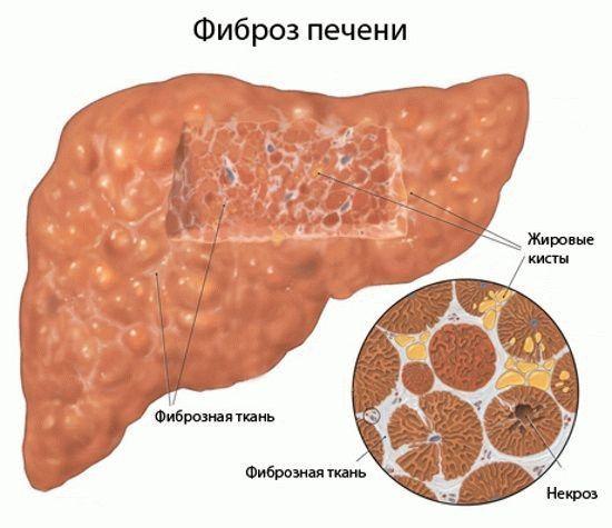 Фиброз печени: симптомы и лечение, степени фиброза