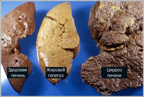 Цирроз печени: причины, симптомы и лечение у мужчин и женщин