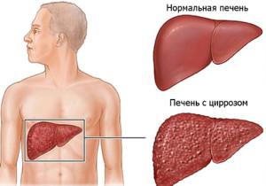 Симптомы цирроза печени у мужчин и методы лечения
